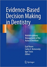 کتاب اویدنس بیسد دسیژن میکینگ این دنتیستری Evidence-Based Decision Making in Dentistry : Multidisciplinary Management of the Nat